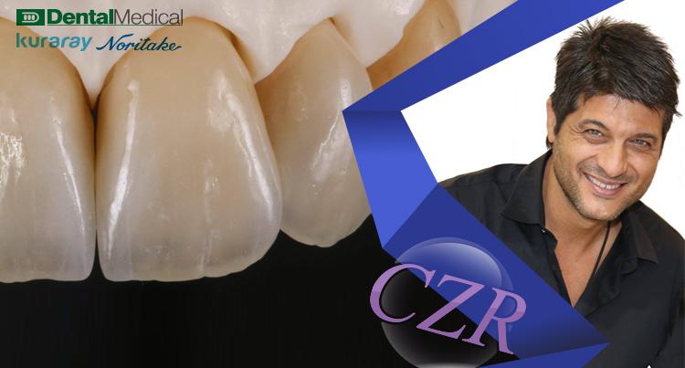 Nondas Vlachopoulos-3 anterior and 1 posterior Katana crowns with CZR