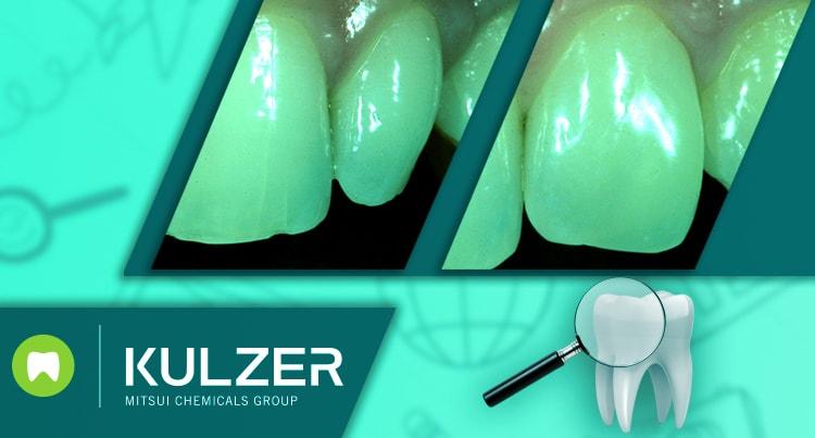Tehnike fasetiranja za transformaciju zuba