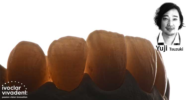 Tačna reprodukcija prirodne denticije-Prikaz slučaja Ivoclar Vivadent