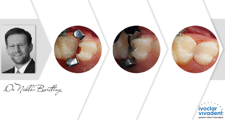 Case study: Efikasan pristup restauraciji mlečnih zuba