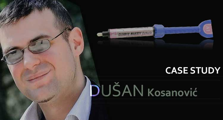 Dušan Kosanović studija slučaja: 'Kompozitne nadoknade prednjih zuba'
