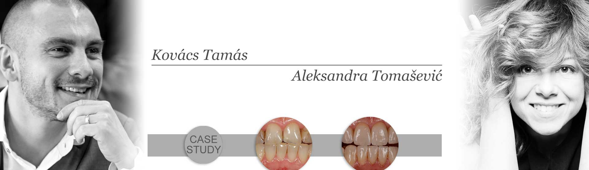 Studija slučaja Dr Tamás Kovács-a:Funkcionalno-estetska rehabilitacija
