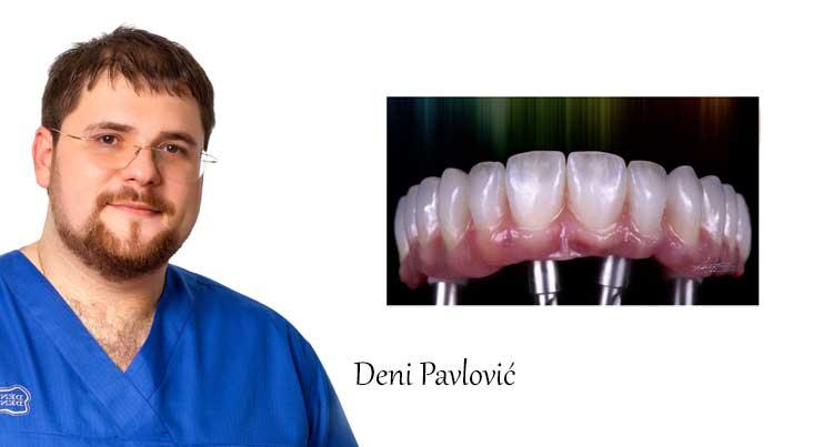 Deni Pavlović - TORONTO - karika koja povezuje